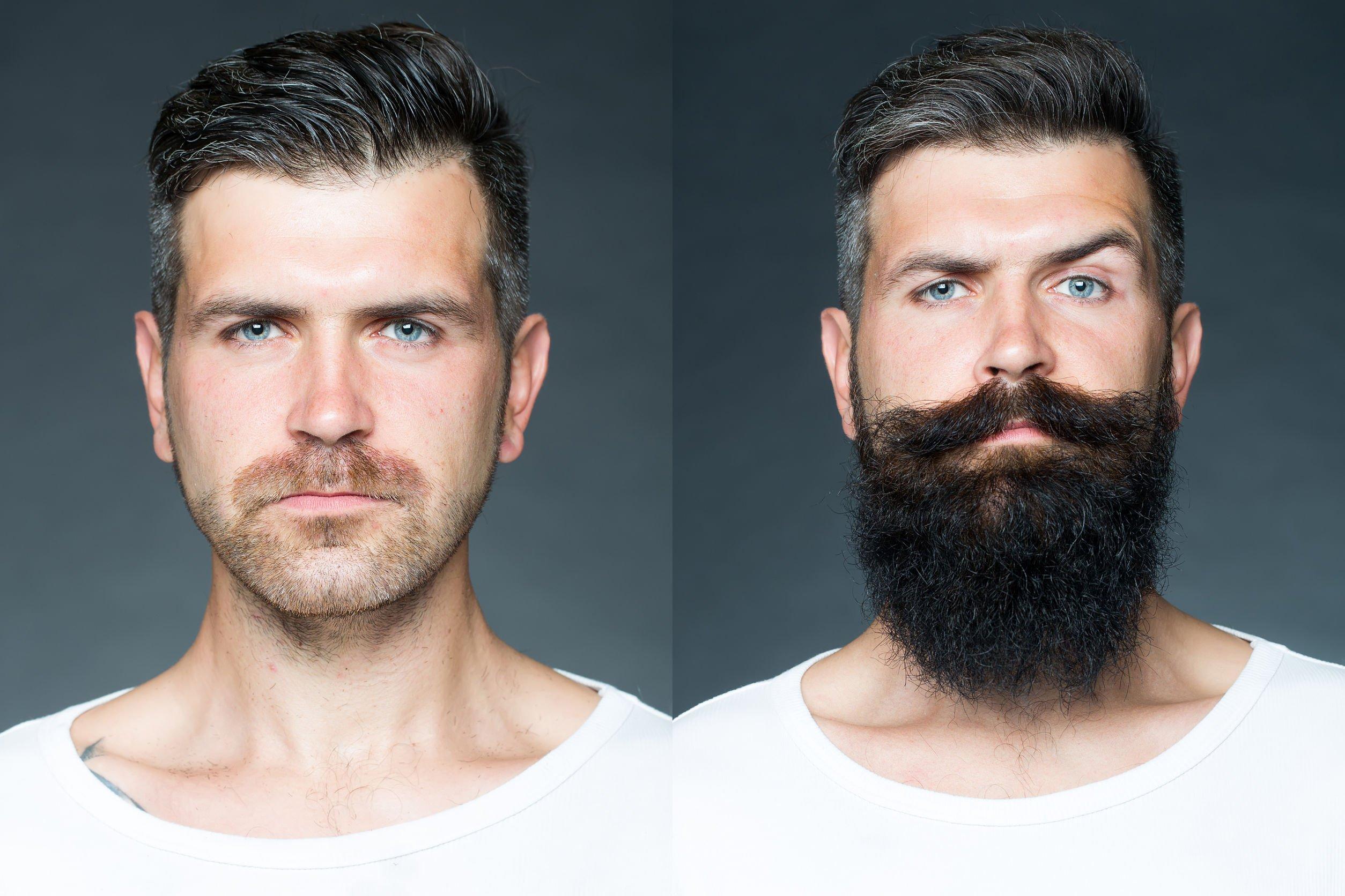 Как быстро отрастить бороду (фото до и после)
