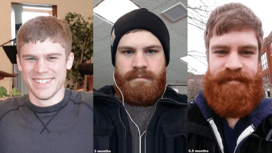 Этапы роста бороды