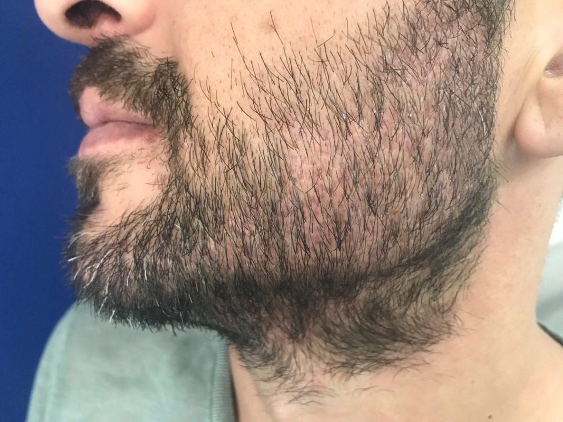 как отрастить бороду если она редкая