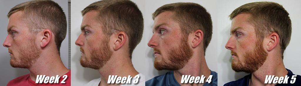 Стадии роста бороды по неделям