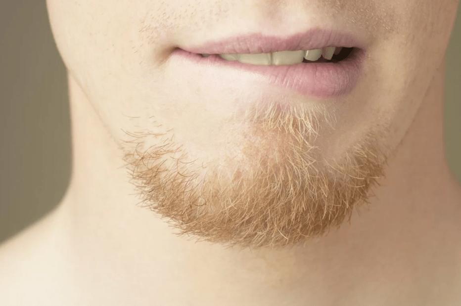 Борода на подбородке