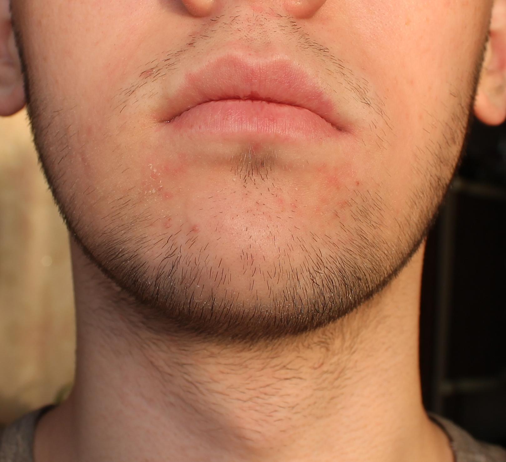 Борода в 20 лет