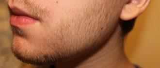 как должна расти борода в 20 лет
