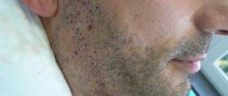 мешают ли прыщи росту бороды