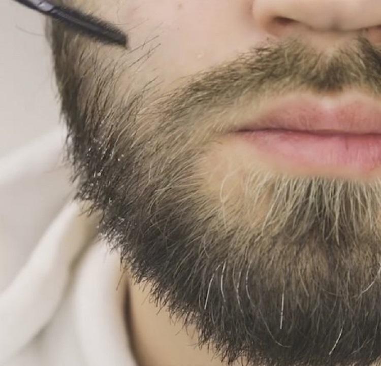 растут белые волосы на бороде