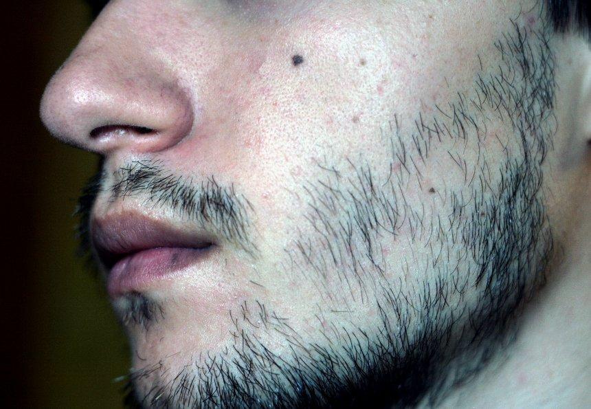 Редкая растительность на лице