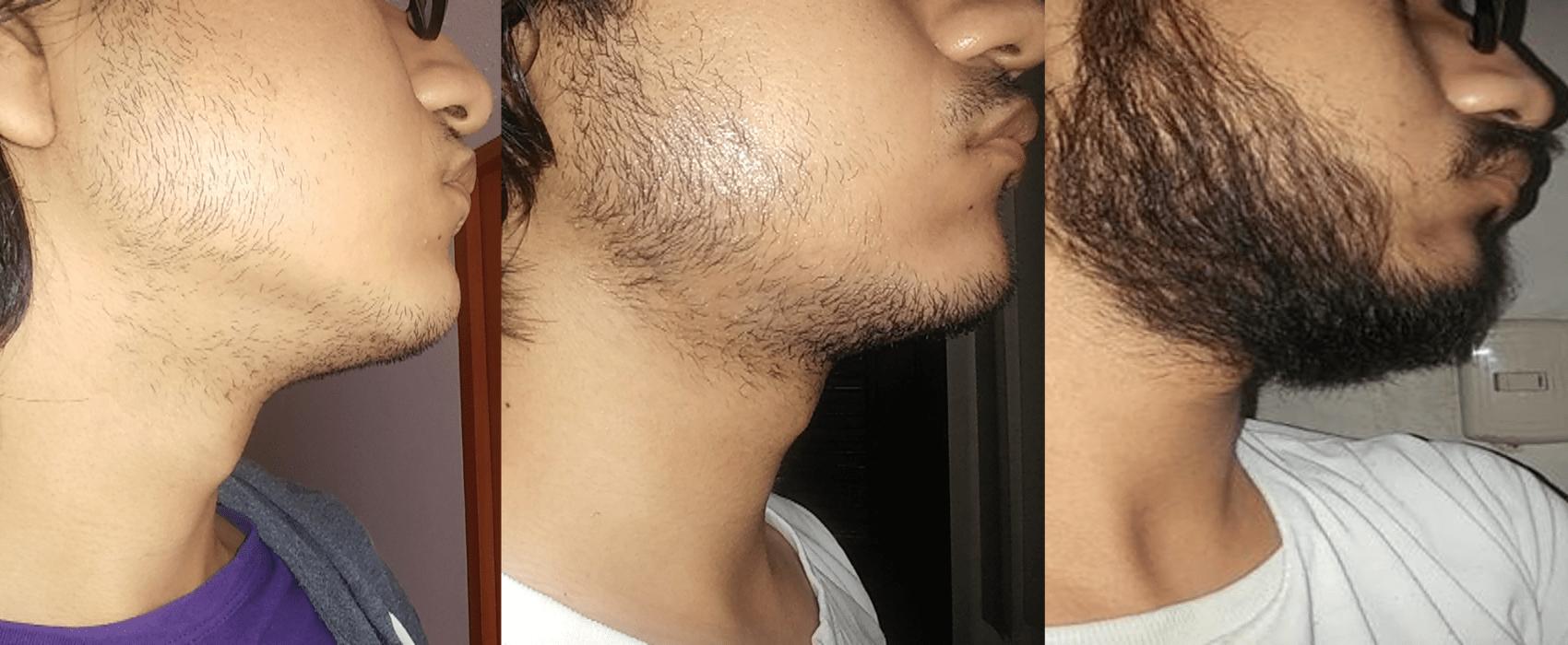 Ускорение роста бороды у подростка