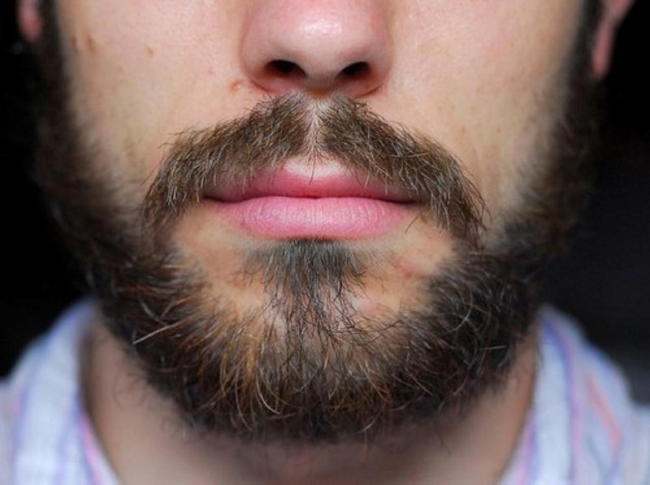 усы растут а борода нет