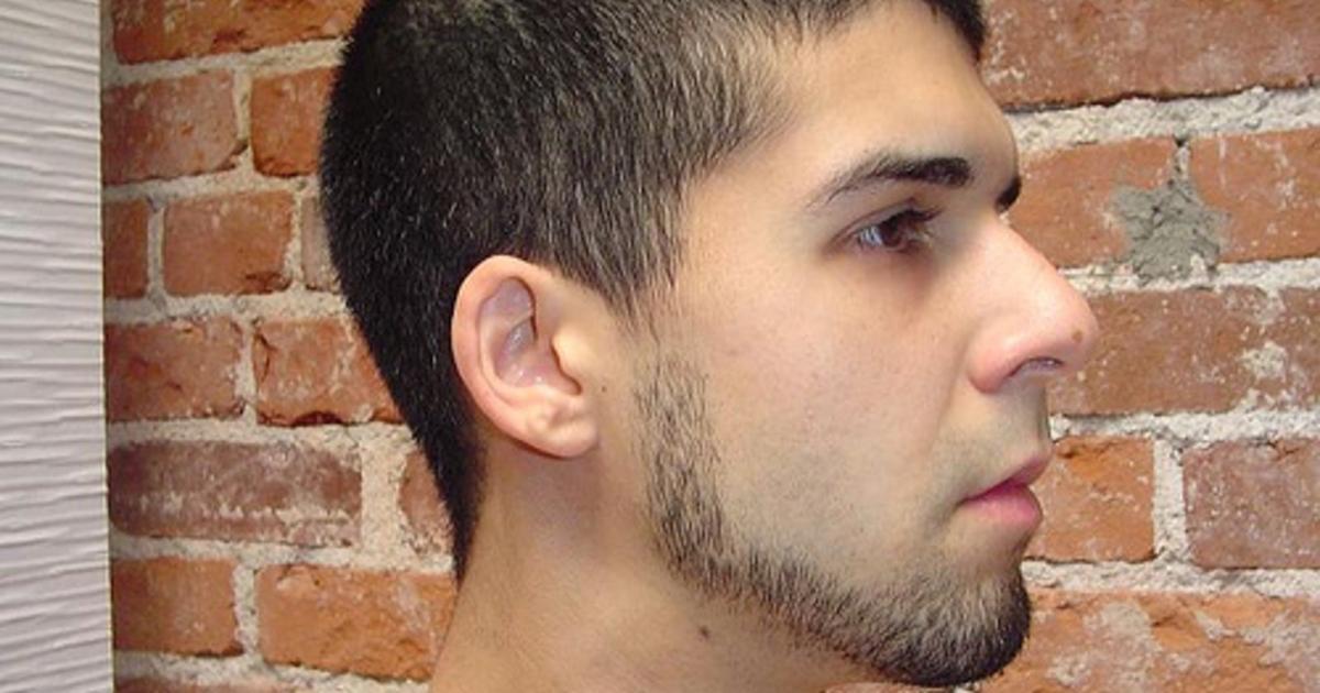Борода без усов в 18 лет