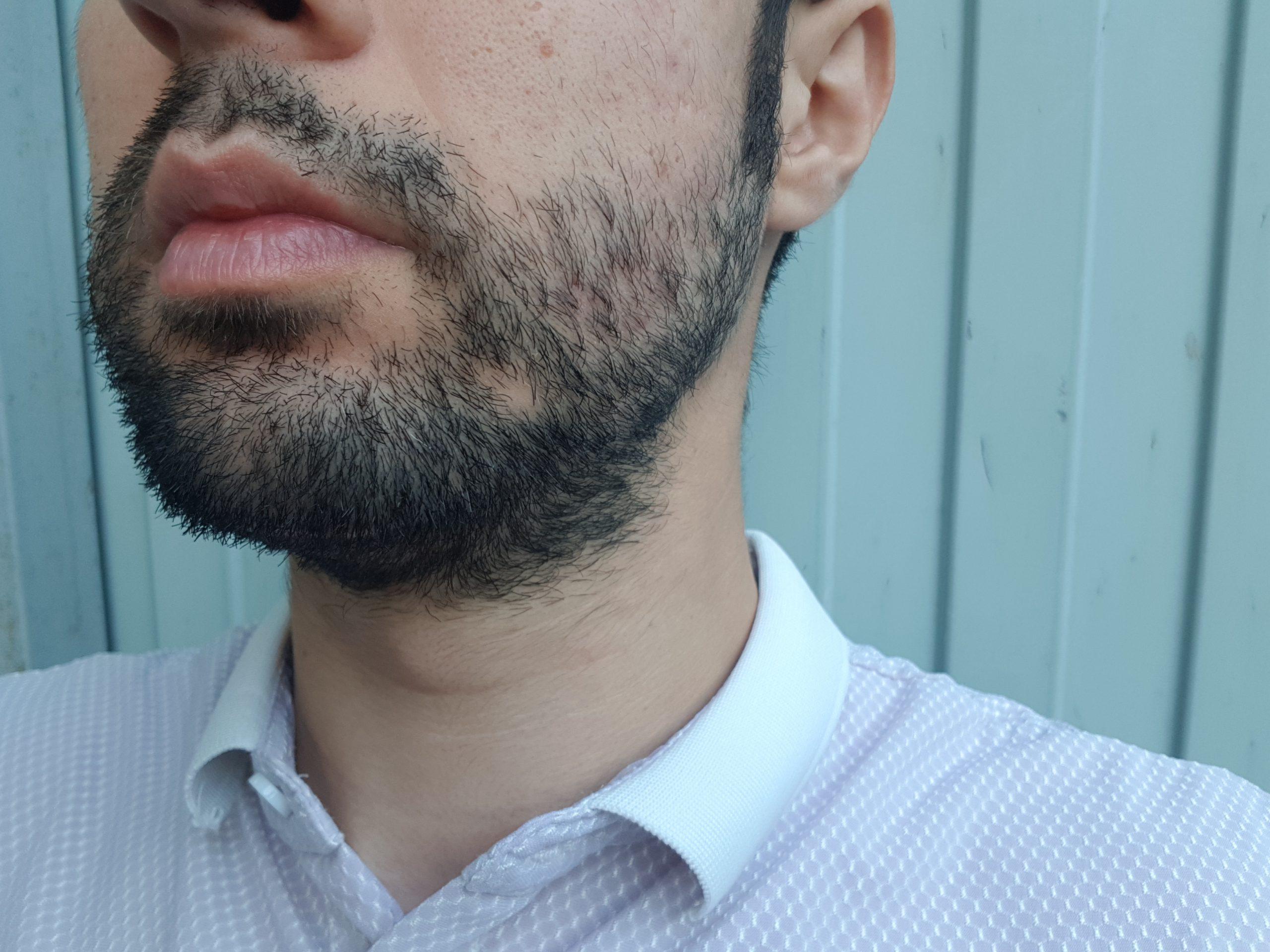 борода растет клочками