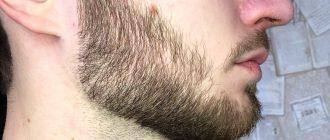 не растет борода в 18
