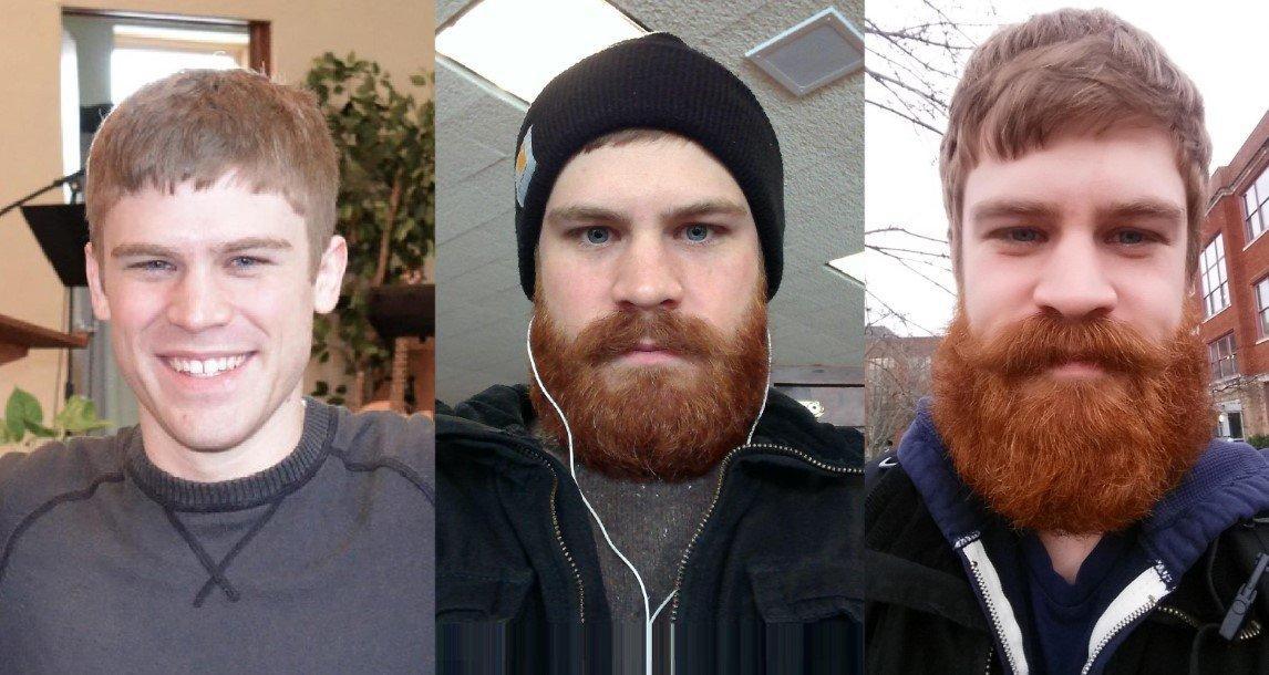 Рост бороды до и после