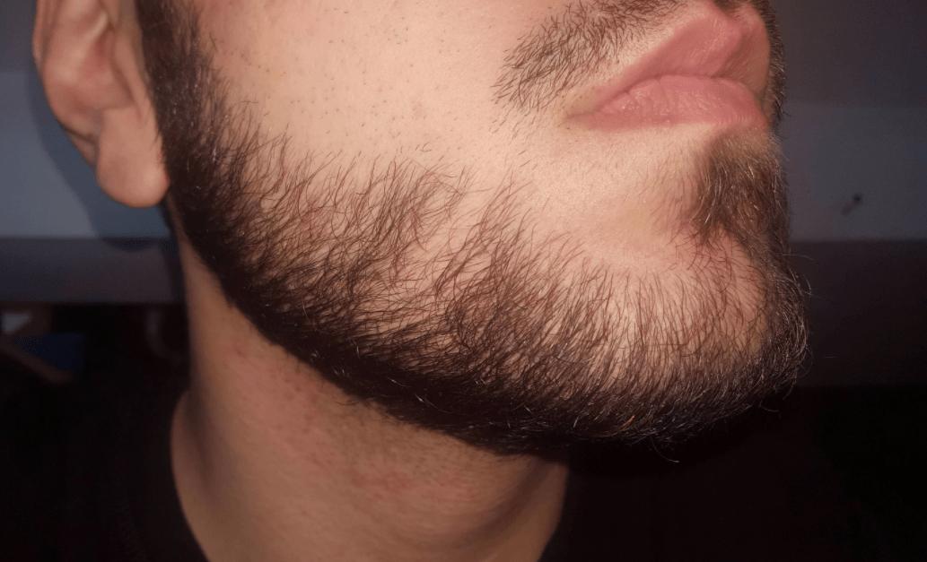 борода растет с одной стороны